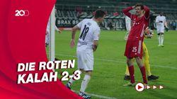 Kena Comeback, Bayern Munich Tumbang dari Moenchengladbach
