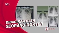 Perbandingan Paru-paru Pasien COVID-19 yang Divaksin dan Belum